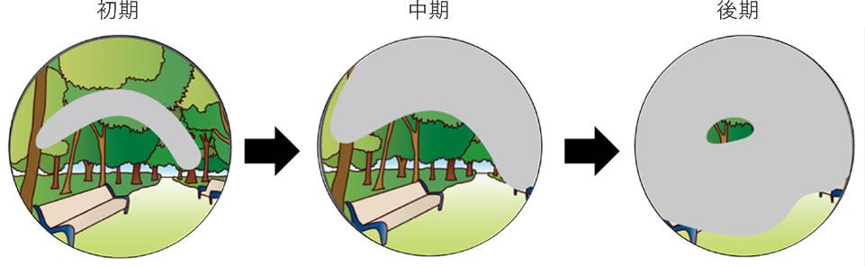 緑内障による視野生涯の進み方(左眼)