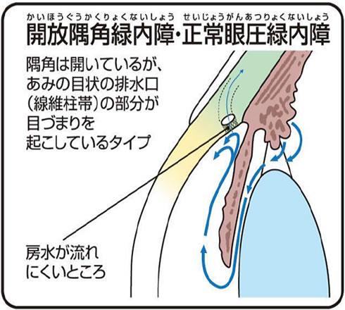 開放隅角緑内障正常眼圧緑内障
