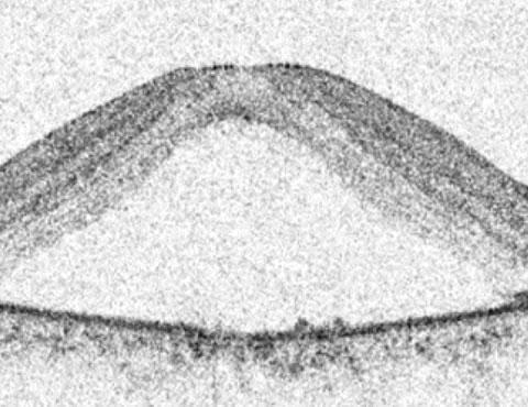 中心性脈絡網膜症