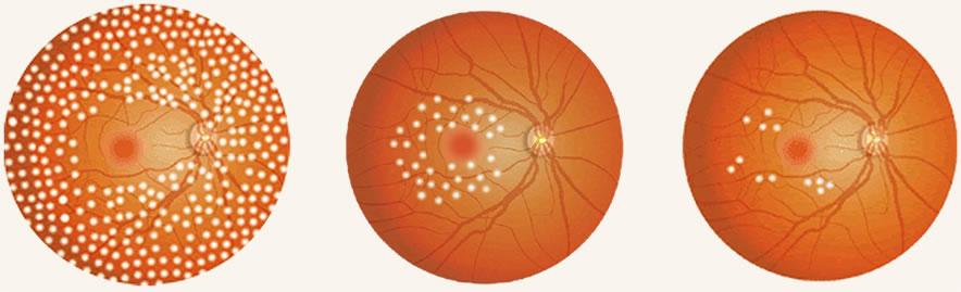 血管内皮細胞成長因子阻害剤(抗VEGF 薬剤)イメージ図