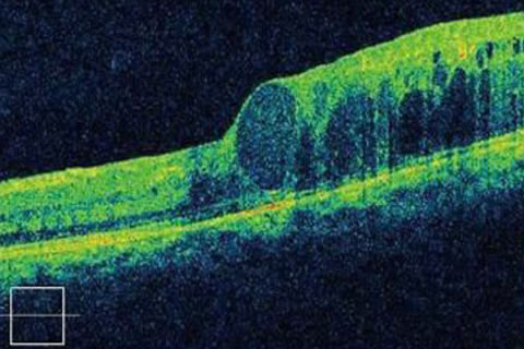 黄斑浮腫の網膜断層像