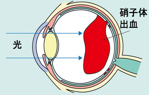 網膜新生血管による硝子体出血、網膜剥離